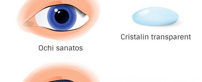 cataracta