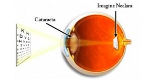cataracta-300x159