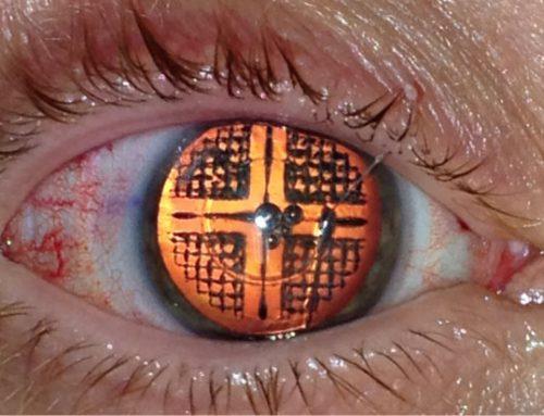 Facoemulsificare vs. Laser în operația pentru cataractă